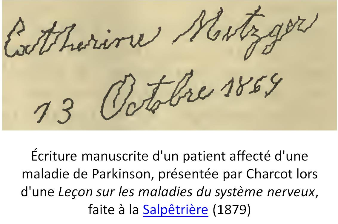Extrait de Lectures on the diseases of the nervous system. Published 1879. Second edition. by H. C. Lea in Philadelphia . Lecture V: On paralysis agitans. Page112. Auteur : Jean-Martin Charcot (illustration @ Wikimedia)