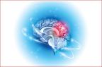 Un méningiome est une tumeur cérébrale développée à partir de cellules des enveloppes du cerveau et de la moelle épinière appelées les méninges (illustration).
