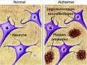 Les patients atteints d'une maladie d'Alzheimer présentent des lésions neuronales caractéristiques.