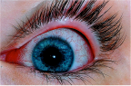Oeil humain présentant une conjonctivite (photo @ Joyhill09 - Wikimedia).
