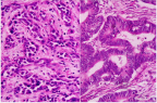 Adénocarcinome peu différencié à gauche et hautement différencié à droite (illustration @Wikimedia).