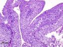 Histopathologie d'un carcinome urothélial de la vessie. Biopsie transurétrale (© KGH, Wikimedia).