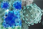 Virus de l'hépatite B (à gauche) et virus de l'immunodéficience humaine de type 1 (à droite).