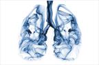 Plus de 90 % des CBNPC sont causés par le tabagisme, actif ou passif (illustration).