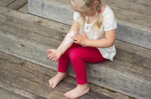 Eczéma surinfecté de l'enfant : étude randomisée de l'intérêt des antibiotiques topiques et oraux
