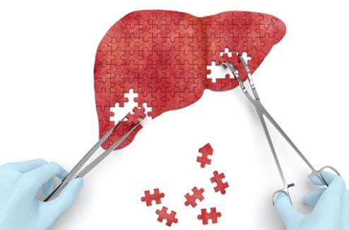 Dépistage, parcours, traitements... : recommandations de l'AFEF pour une élimination rapide de l'hépatite C