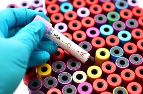 Cancer de la prostate : résultats de la plus grande étude effectuée sur l'impact d'un dosage du PSA