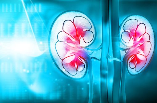La lithiase cystinique est la seule expression clinique de la cystinurie, anomalie héréditaire du transport transépithélial rénal et intestinal de la cystine et des acides aminés dibasiques (illustration).