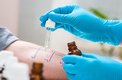 Le prick-test consiste à piquer dans l'épiderme à travers une goutte d'allergène préalablement déposée sur la peau, puis à observer la réponse d'hypersensibilité immédiate (prurit, érythème, papule).