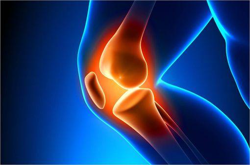 Les données disponibles ne permettant pas de confirmer l'intérêt des dispositifs médicaux à base d'acide hyaluronique en solution injectable dans la stratégie thérapeutique de l'arthrose du genou (illustration).