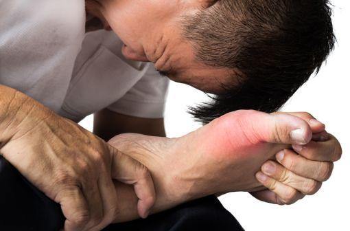 La crise de goutte touche le plus souvent le gros orteil, dans 56 à 78 % des cas lors de la première crise (illustration).