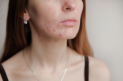 Survenant généralement à l'adolescence, l'acné est liée à l'hypersécrétion de sébum et à des anomalies dekératinisationaboutissant à la formation decomédons (illustration).