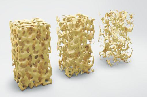L'ostéoporose est caractérisée par une fragilité excessive du squelette, due à une diminution de la masse osseuse et à l'altération de la micro-architecture osseuse (illustration).