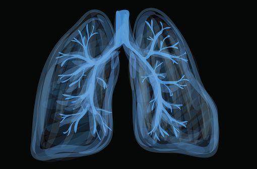 L'emphysème par déficit génétique en alpha-1 antitrypsine représente une forme rare de bronchopneumopathies chroniques obstructives (illustration).