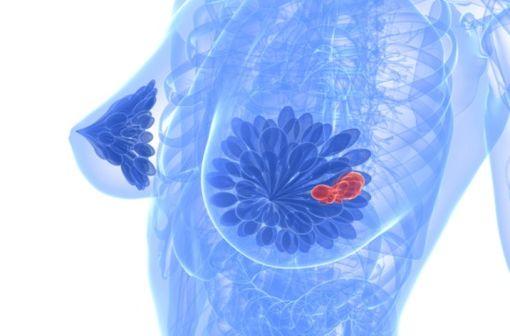 Sous forme orale, ALKERAN est indiqué dans la prise en charge de myélomes multiples, d'adénocarcinomes ovariens et de carcinomes du sein (illustration).