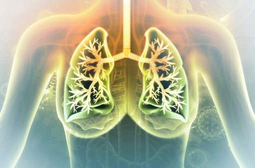 Le cancer bronchique non à petites cellules représente près de 85% de l'ensemble des cancers du poumon (illustration).