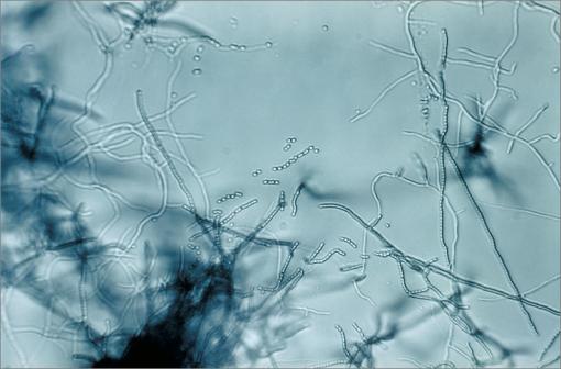 La mitomycine C est une substance antinéoplasique et antibiotique extraite de Streptomyces caespitosus, une espèce d'actinobactéries (illustration @Wikimedia).
