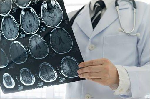 Une surveillance par IRM est désormais recommandée en début de traitement par cyprotérone, puis régulièrement pour tous les patients (illustration).