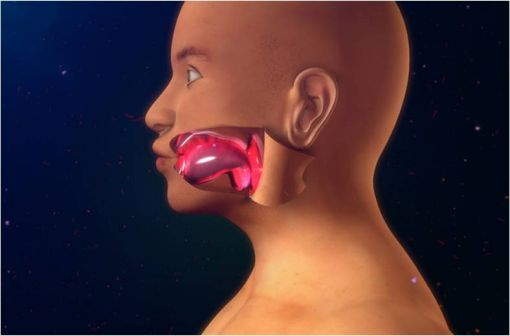 En cas d'angiœdème de la face, la localisation laryngée est à haut risque d'asphyxie (illustration).