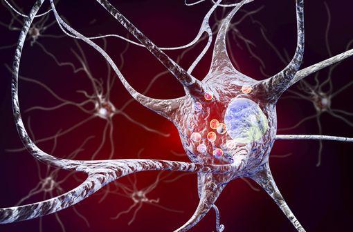 Représentation en 3D de neurones contenant des corps de Lewy (petites sphères rouges), caractéristiques de la maladie de Parkinson (illustration).