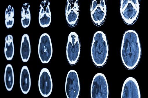 ASASANTINE LP est indiquée dans la prévention de l'AVC après un accident ischémique cérébral