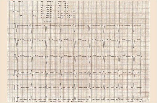 ECG montrant un QT long (photo @ Bionerd sur Wikimedia).