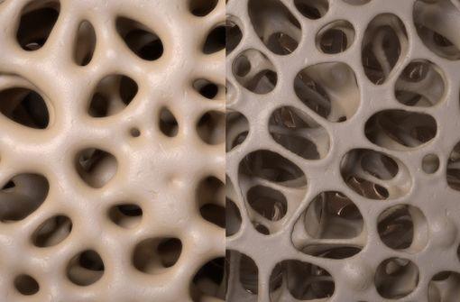 Os normal à gauche, os ostéoporotique à droite (modélisation 3D).