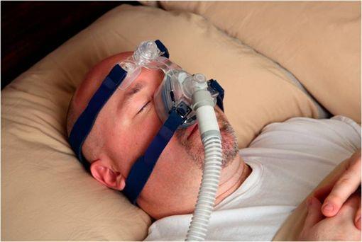 Patient souffrant d'un syndrome d'apnées du sommeil et dormant avec un dispositif de pression positive continue (illustration).