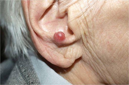Carcinome à cellules de Merkel chez une patiente âgée de 94 ans (illustration @Klaus D. Peter,  sur Wikimédia).