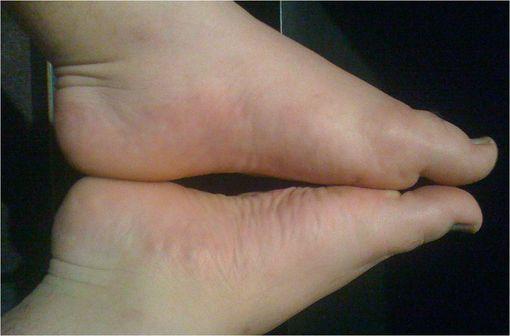 Comparaison entre un pied atteind de goutte et son symétrique, mettant en évidence le gonflement des tissus environnants (illustration @Fatlittlebastard sur Wikimedia).