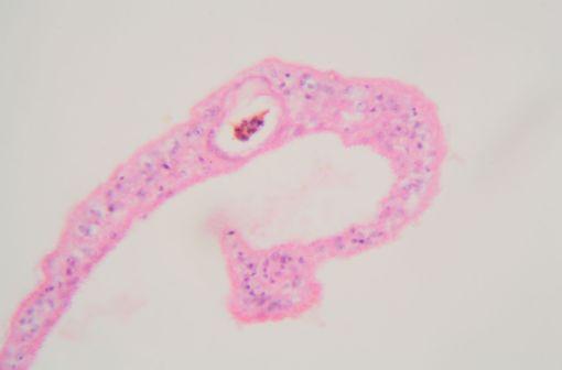 Schistosoma mansoni : vue au microscope (illustration).