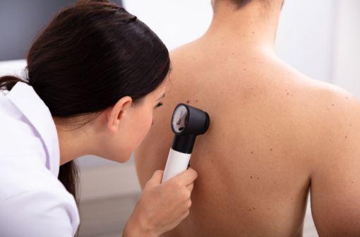 Le mélanome est un cancer cutané à fort potentiel métastatique, lié à la transformation maligne de cellules pigmentaires de la peau, les mélanocytes (illustration).