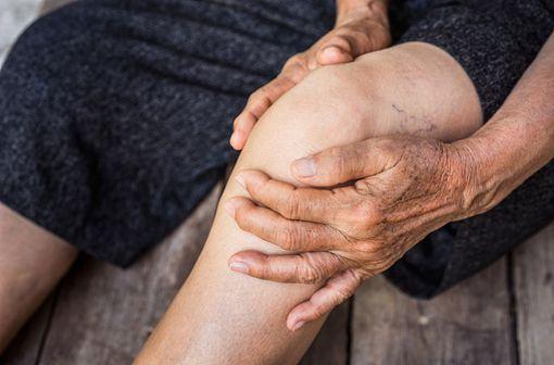 Dans près de la moitié des cas, l'arthrose se situe au niveau du genou, entre le fémur et le tibia (illustration).