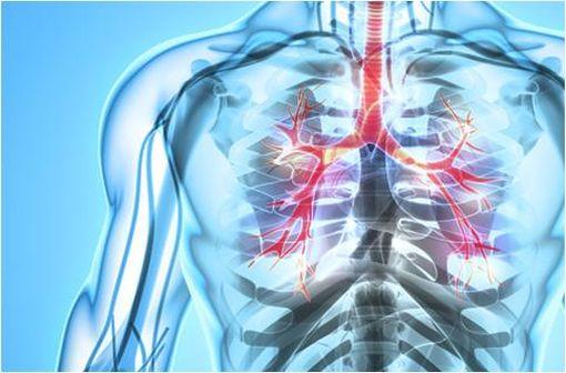 La gravité de l'asthme sévère est liée à la survenue d'exacerbations qui nécessitent une intervention médicale d'urgence (illustration).