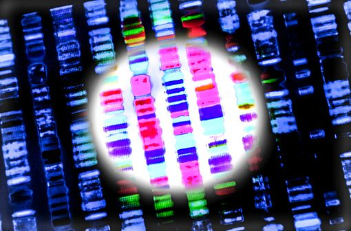 L'angio-œdème héréditaire (AOH) est une maladie génétique qui induit un déficit en inhibiteur de la C1 estérase dont le gène est situé sur le 11e chromosome (illustration).