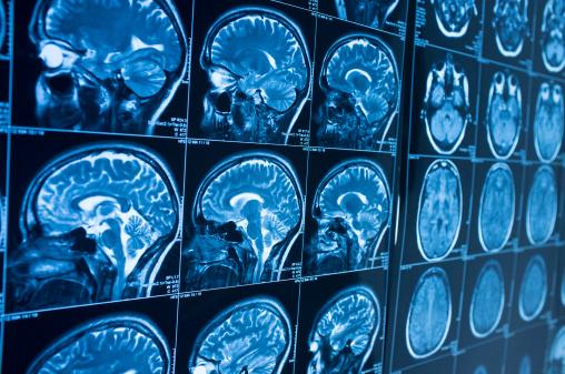 Les produits de contraste comme CLARISCAN Gé sont indiqués pour le rehaussement du contraste en IRM pour une meilleure visualisation/délimitation (illustration).