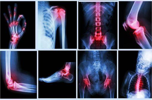 La majorité des atteintes articulaires de la polyarthrite rhumatoïde, de la spondylarthrite ankylosante et des atteintes cutanées du psoriasis en plaques est médiée par des molécules pro-inflammatoires qui appartiennent à un réseau contrôlé par le TNF (illustration).