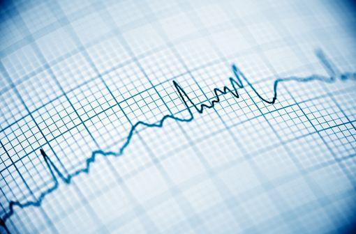 Le risque d'effet indésirable cardiaque associé à l'hydroxychloroquine est connu et majoré par l'association à d'autres molécules comme l'azithromycine (illustration).
