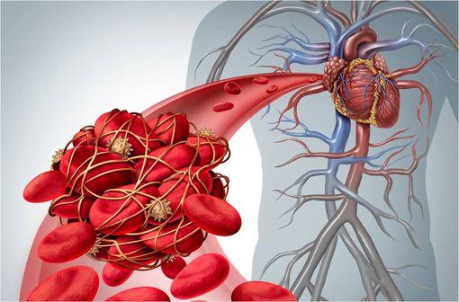 Les héparines de bas poids moléculaire (HBPM), telle l'énoxaparine, occupent une place primordiale dans la prise en charge de la maladie thrombo-embolique veineuse et du syndrome coronaire aigu (illustration).