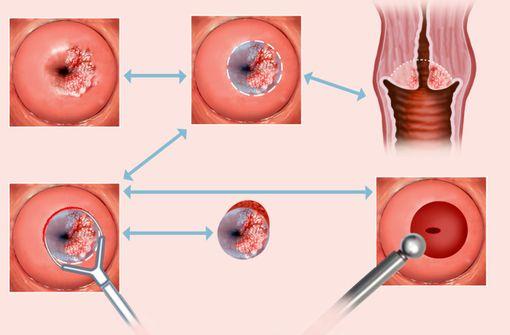 Cancer du col de l'utérus (illustration).
