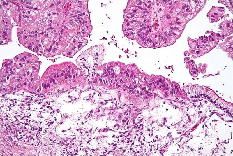 Coupe histologique d'un cancer de l'ovaire (@ Nephron, Wikimedia)