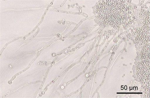 Candida albicans sur lame en milieu de culture RAT (Riz,  Agar et Tween) [image @ Y Tambe sur Wikimedia].