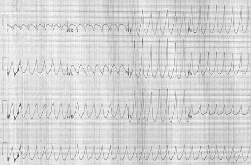 Tracé électrocardiographique montrant une tachycardie ventriculaire (illustration @Karthik Sheka, M.D., sur Wikimedia).