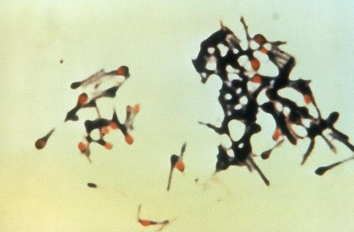 Un groupe de Clostridum tetani, bactéries responsables du tétanos (illustration, photo prise par la Centers for Disease Control and Prevention's Public Health Image Library).