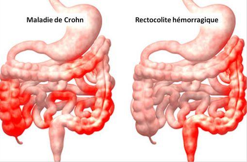 Les atteintes diffuses liée à la maladie de Crohn sont diffuses, alors que celles de la RCH concernent la partie distale du tube digestif (illustration, © OnHealth).