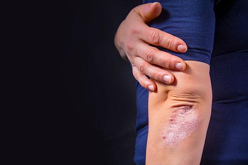 Lésions de psoriasis localisées aux coudes (illustration)