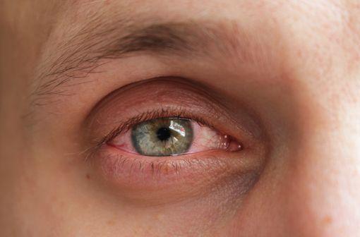 Les corticoïdes et en particulier la dexaméthasone restent indispensables pour traiter les pathologies inflammatoires sévères de la surface oculaire (illustration).