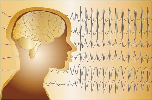 DI-HYDAN est indiqué dans le traitement de certaines formes d'épilepsie chez l'enfant et l'adulte (illustration).