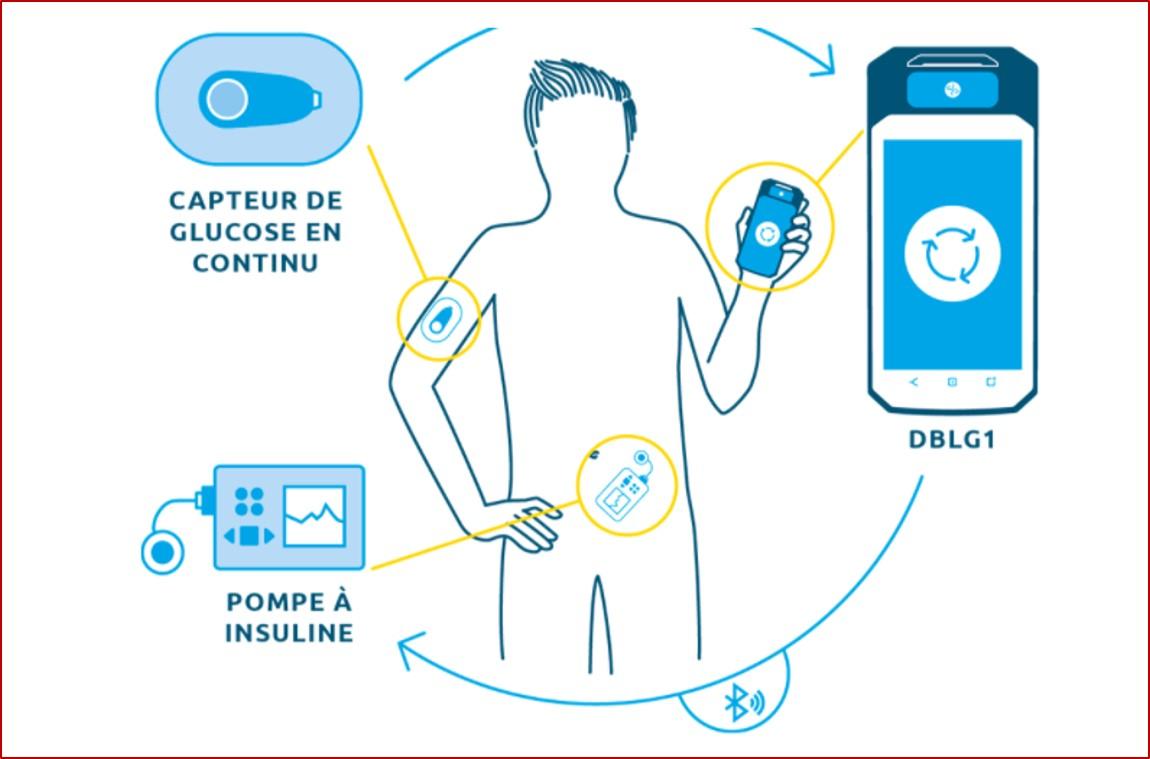 L'algorithme DBLG1 développé par Diabeloop est hébergé dans un terminal dédié qui sert d'interface utilisateur avec le système, associé avec un capteur de glucose en continu (CGM) et une pompe à insuline (illustration @Diabeloop).