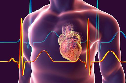 Le diclofénac expose les patients traités à des risques cardiovasculaires même à faible dose et pour des période relativement courtes (illustration).